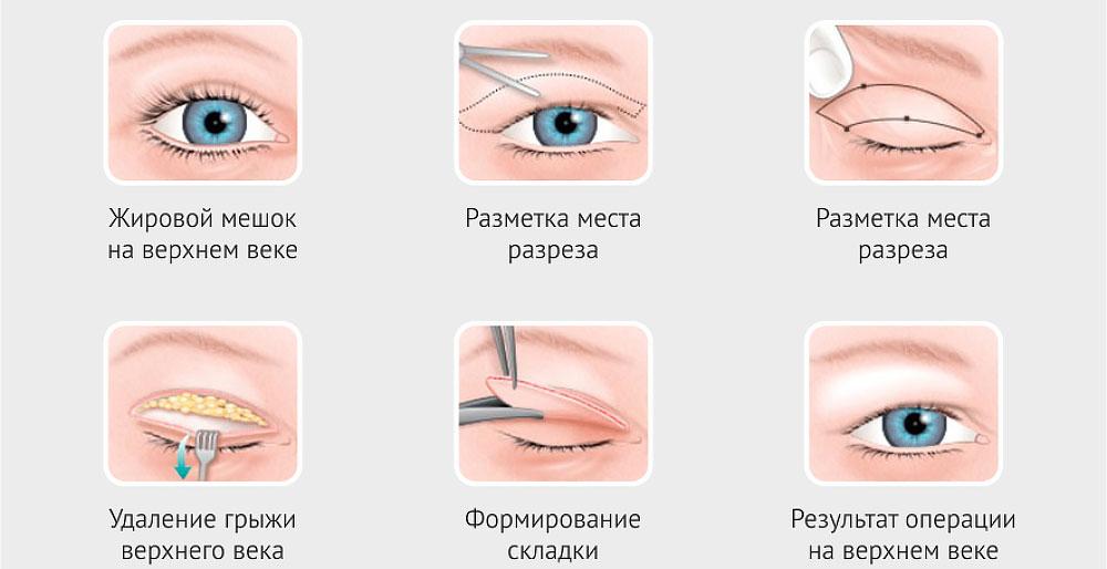 этапы верхней блефаропластики