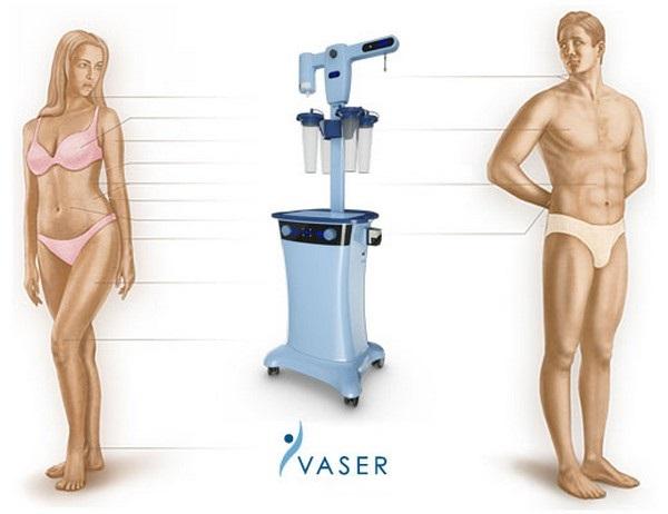 зоны проведения Vaser-липосакции у мужчин и женщин