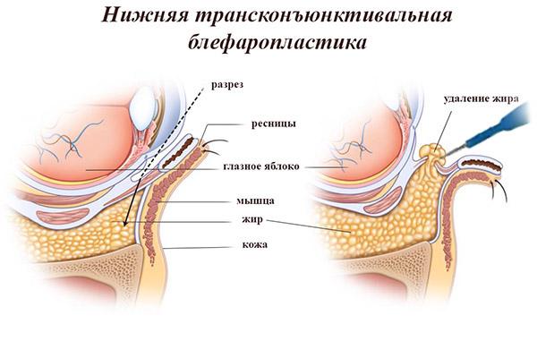 нижняя трансконъюктивальная блефаропластика