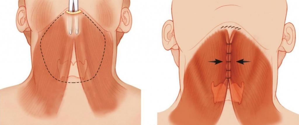 проведение пластики шеи и наложение шва