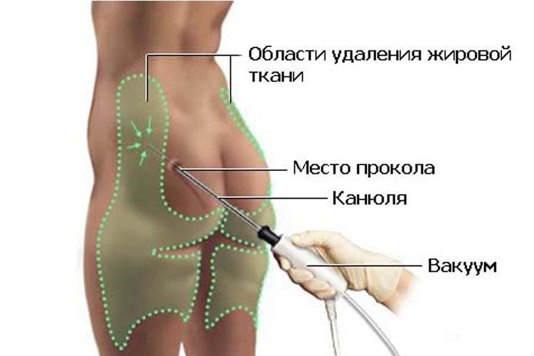 области удаления жира при липомоделировании