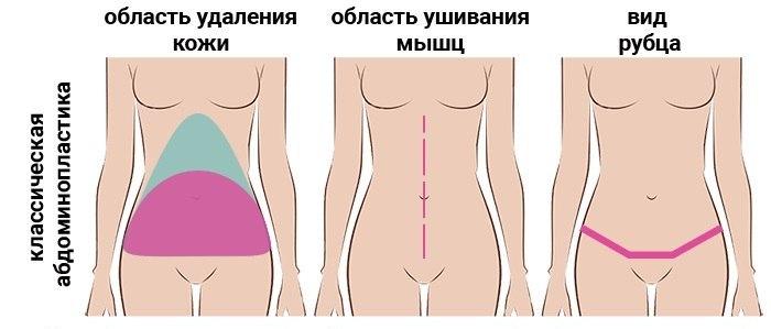 область удаления кожи при классической абдоминопластике