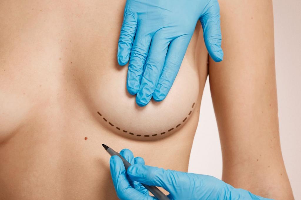 увеличение груди в клинике Эталон