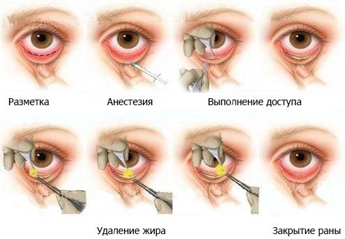 этапы проведения нижней блефаропластики