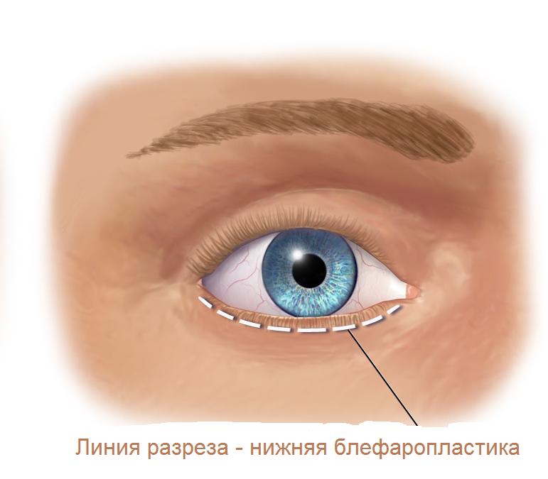 линия разреза при нижней блефаропластике