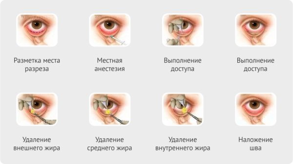 этапы проведения блефаропластики