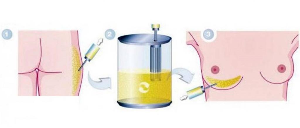 этапы проведения липоскульптуры