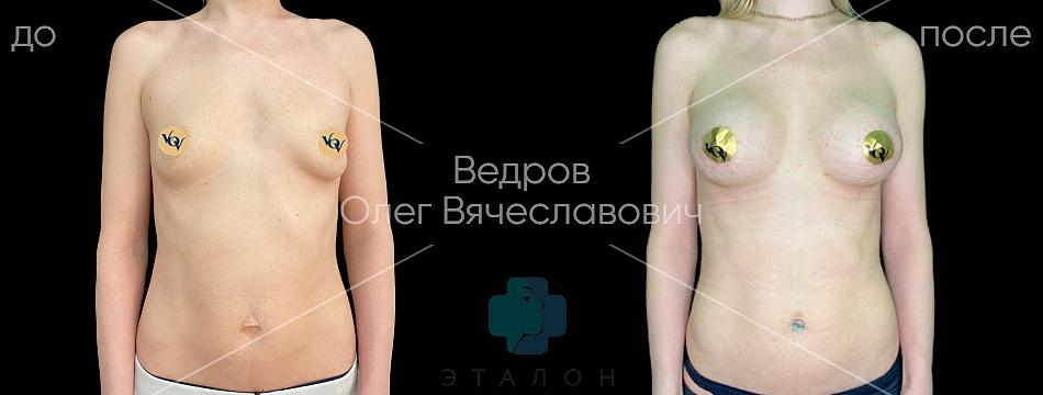 фото до/после увеличивающей маммопластики в клинике Эталон