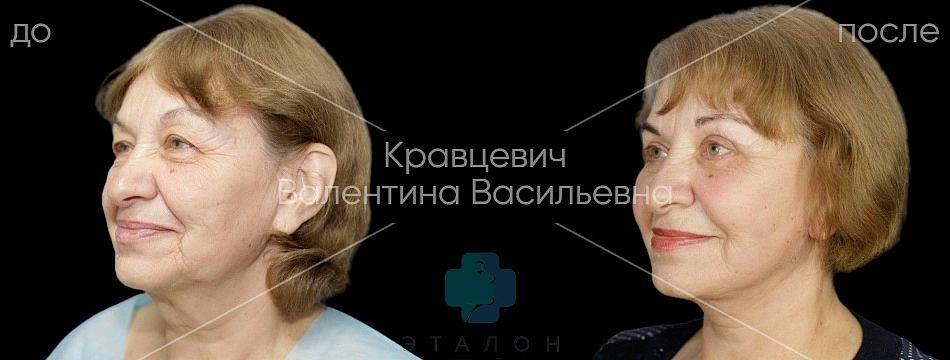 фото до/после фейслифтинга в клинике Эталон