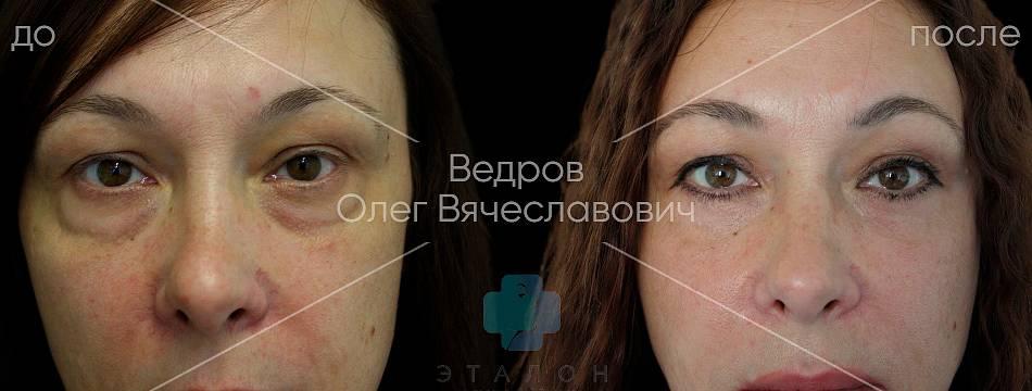 фото до и после нижней блефаропластики в клинике Эталон