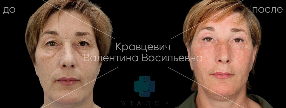 фото до/после проведения круговой пластики век у хирурга Кравцевич Валентины Васильевны