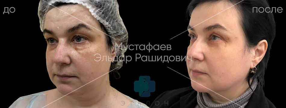 фото до/после проведения круговой пластики век у хирурга Мустафаева Эльдара Рашидовича